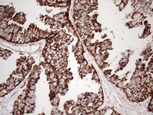 STOML2 Antibody in Immunohistochemistry (Paraffin) (IHC (P))