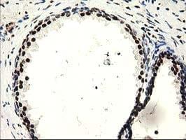 SULT1A1 Antibody in Immunohistochemistry (Paraffin) (IHC (P))