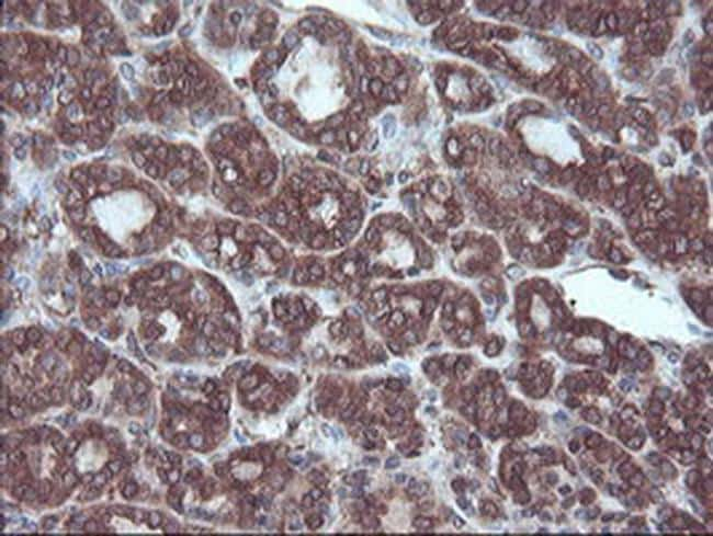 SULT1A1 Antibody in Immunohistochemistry (Paraffin) (IHC (P))