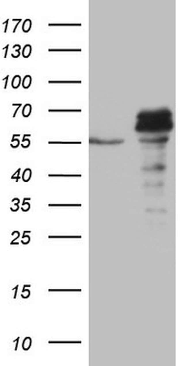 SUOX Antibody in Western Blot (WB)