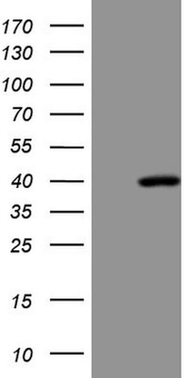 SUPT3H Antibody in Western Blot (WB)