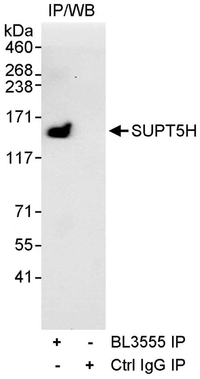 SUPT5H Antibody in Immunoprecipitation (IP)