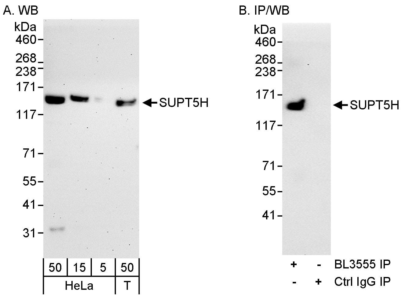 SUPT5H Antibody in Western Blot (WB)