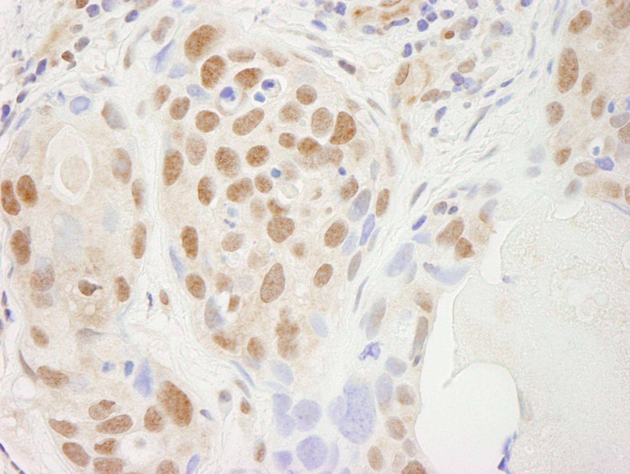 SUPT5H Antibody in Immunohistochemistry (IHC)