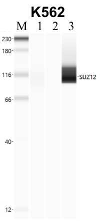 SUZ12 Antibody in Immunoprecipitation (IP)