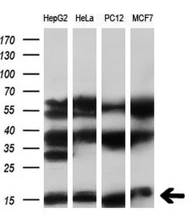 SYNJ2BP Antibody in Western Blot (WB)