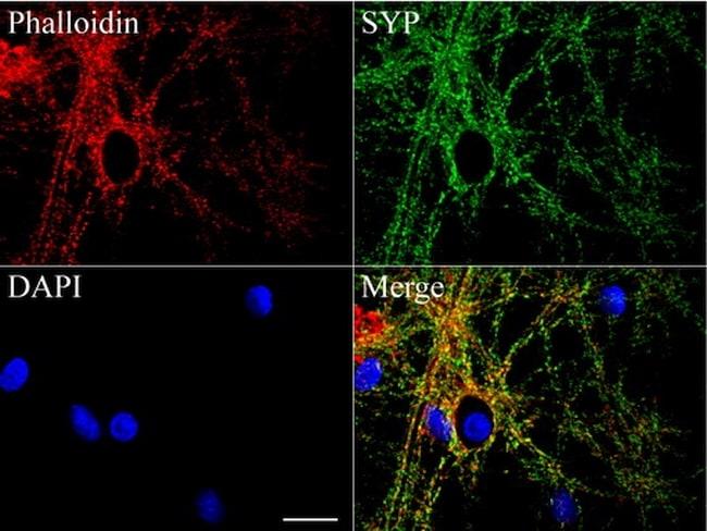 SYP Antibody in Immunofluorescence (IF)