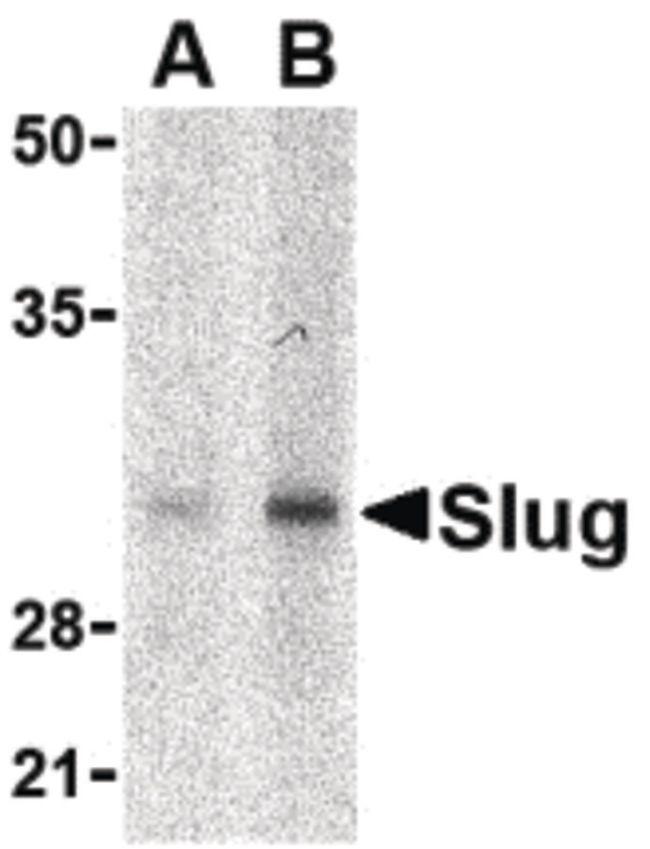 SLUG Antibody in Western Blot (WB)