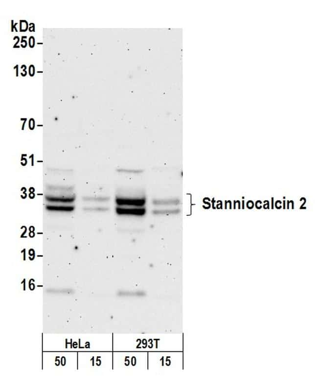 Stanniocalcin 2 Antibody in Western Blot (WB)