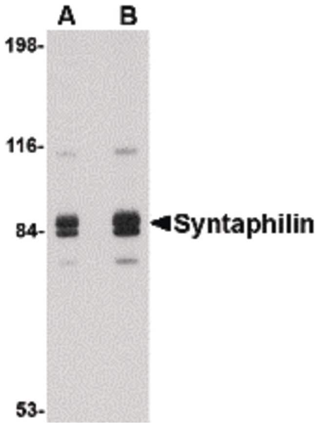 Syntaphilin Antibody in Western Blot (WB)