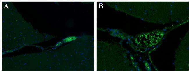 Syntaxin 1 Antibody in Immunohistochemistry (Paraffin) (IHC (P))
