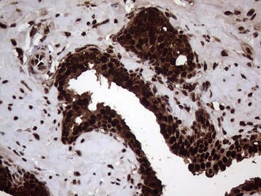 TALDO1 Antibody in Immunohistochemistry (Paraffin) (IHC (P))