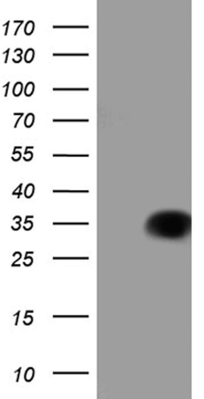 TALDO1 Antibody in Western Blot (WB)
