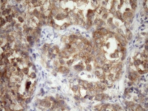 TARBP2 Antibody in Immunohistochemistry (Paraffin) (IHC (P))