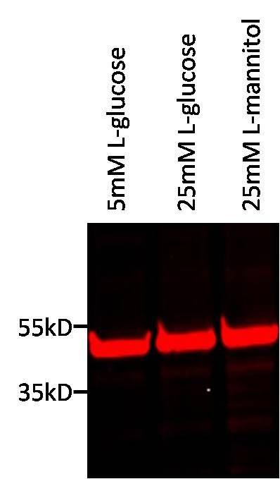 TBP Antibody in Western Blot (WB)