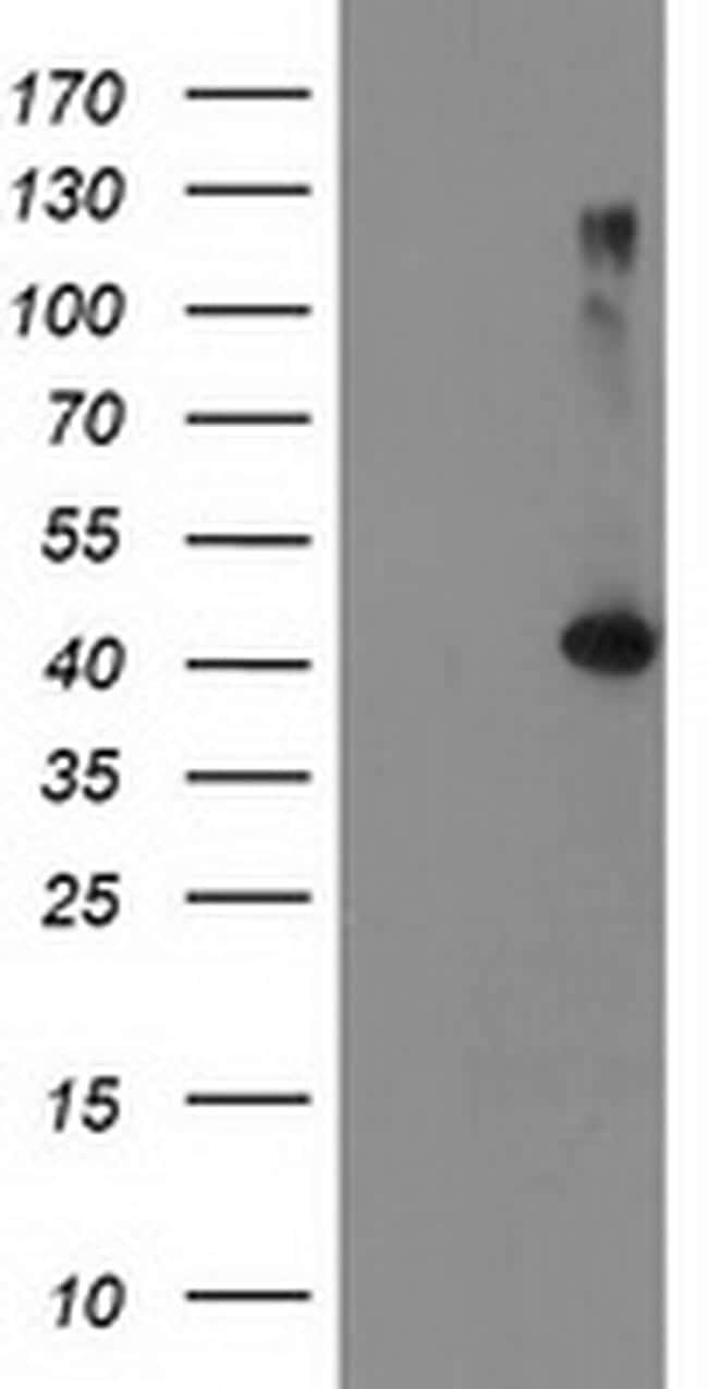 TBC1D21 Antibody in Western Blot (WB)