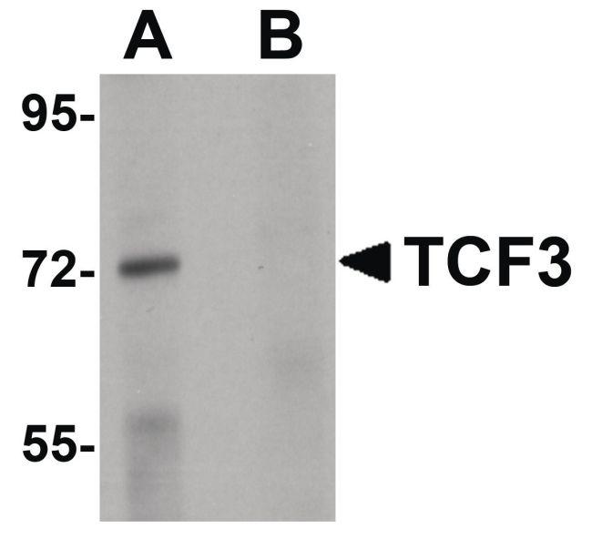 TCF3 Antibody in Western Blot (WB)