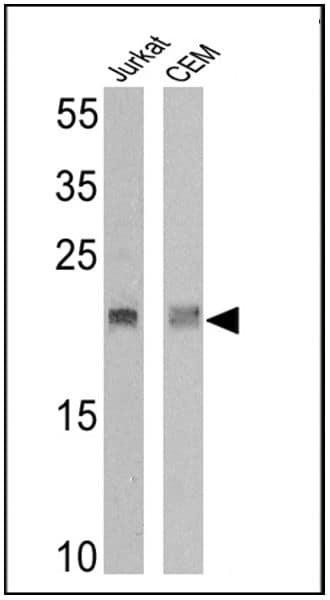 TCR V delta 2 Antibody in Western Blot (WB)