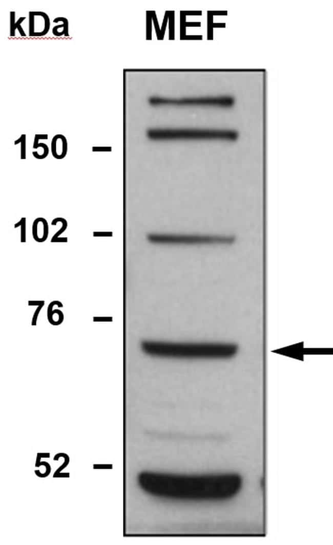 TDP1 Antibody in Western Blot (WB)