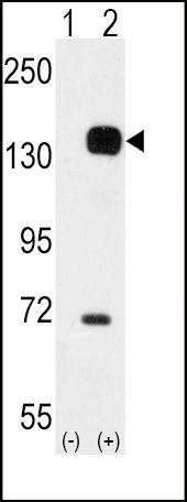 TEK Antibody in Western Blot (WB)