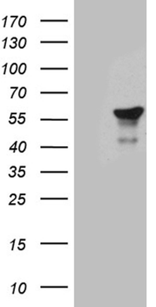TFDP2 Antibody in Western Blot (WB)