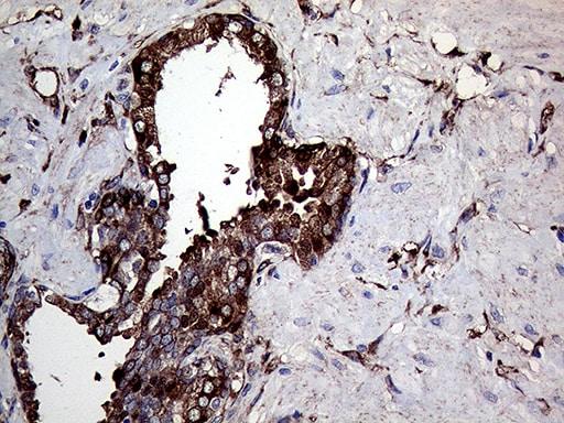 TGM2 Antibody in Immunohistochemistry (Paraffin) (IHC (P))