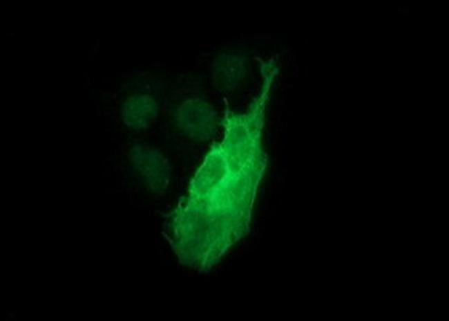 TH Antibody in Immunocytochemistry (ICC/IF)