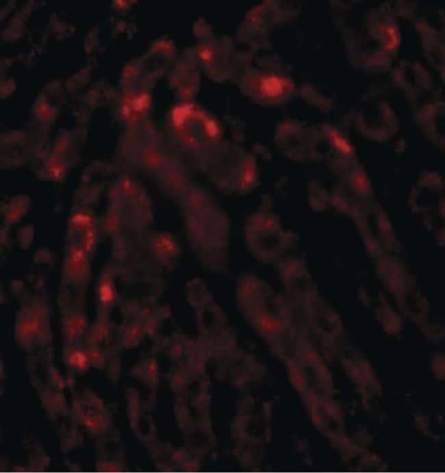 THEM2 Antibody in Immunohistochemistry (IHC)