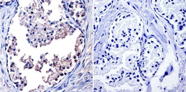 TIMP1 Antibody in Immunohistochemistry (IHC)