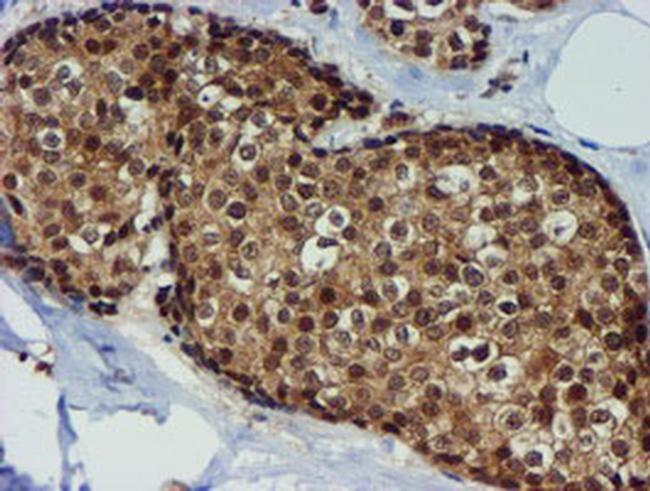 TIMP2 Antibody in Immunohistochemistry (Paraffin) (IHC (P))