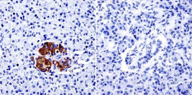 TIMP2 Antibody in Immunohistochemistry (IHC)