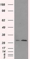 TIPRL Antibody in Western Blot (WB)
