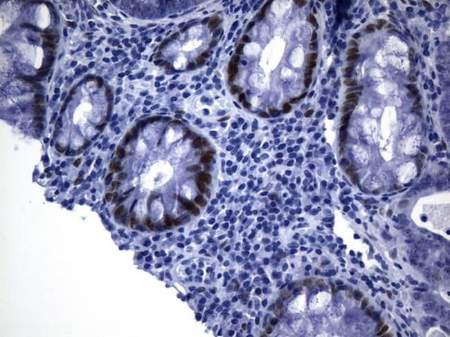TLE1 Antibody in Immunohistochemistry (Paraffin) (IHC (P))