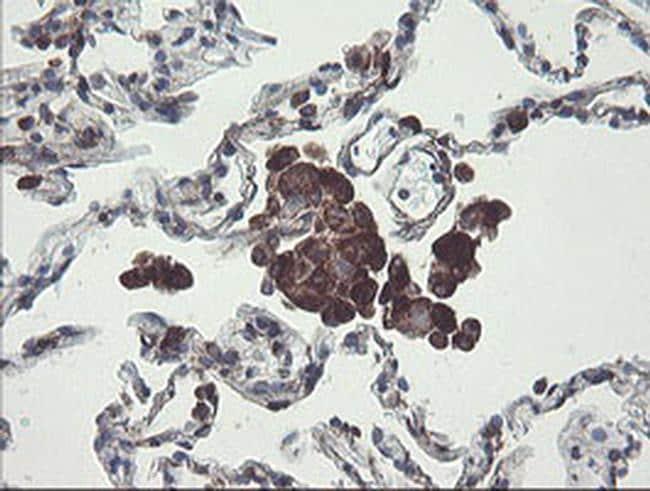 TMEM173 Antibody in Immunohistochemistry (Paraffin) (IHC (P))