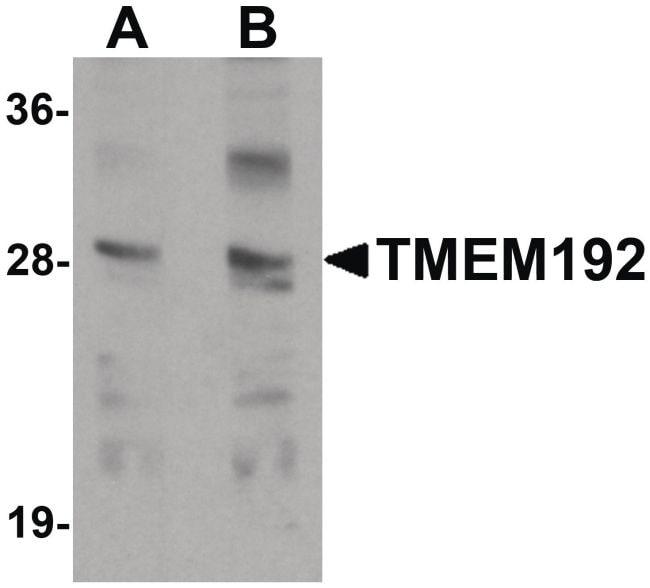 TMEM192 Antibody in Western Blot (WB)