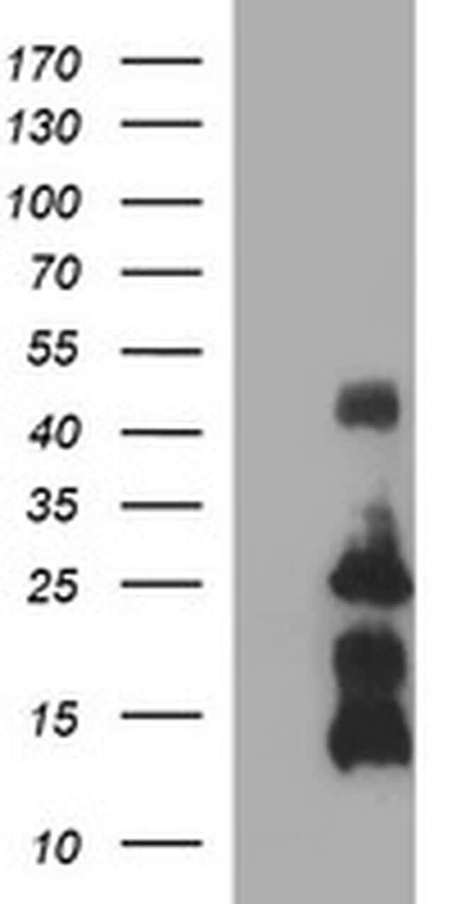 TNFA Antibody in Western Blot (WB)