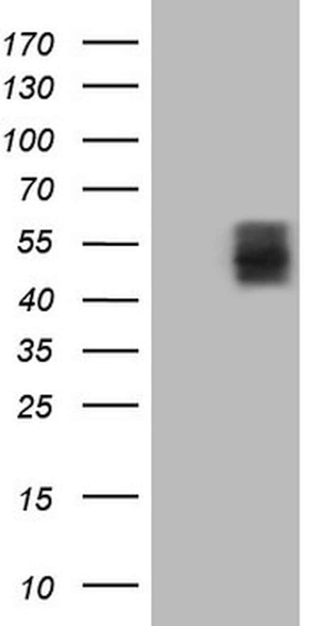 TNFRSF10A Antibody in Western Blot (WB)