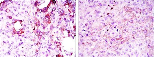 TNFRSF11B Antibody in Immunohistochemistry (IHC)