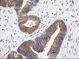 TOMM34 Antibody in Immunohistochemistry (Paraffin) (IHC (P))