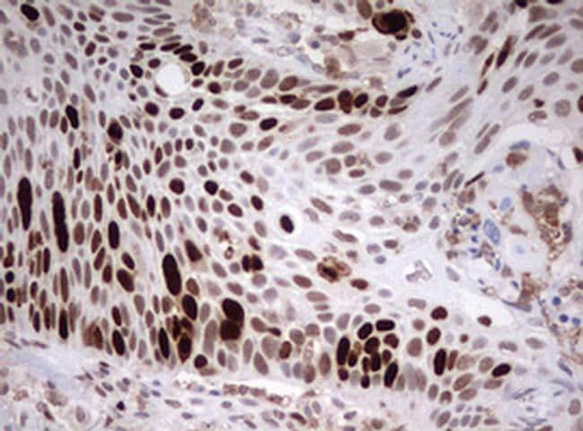TOP2A Antibody in Immunohistochemistry (Paraffin) (IHC (P))