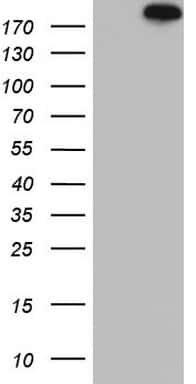TOP2A Antibody in Western Blot (WB)