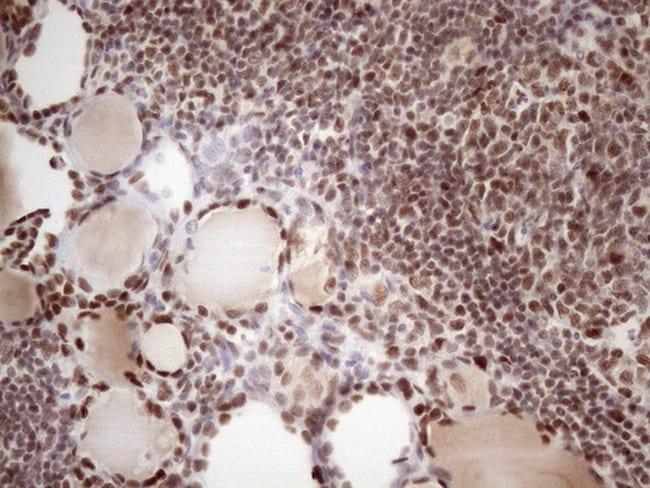 TP53BP1 Antibody in Immunohistochemistry (Paraffin) (IHC (P))