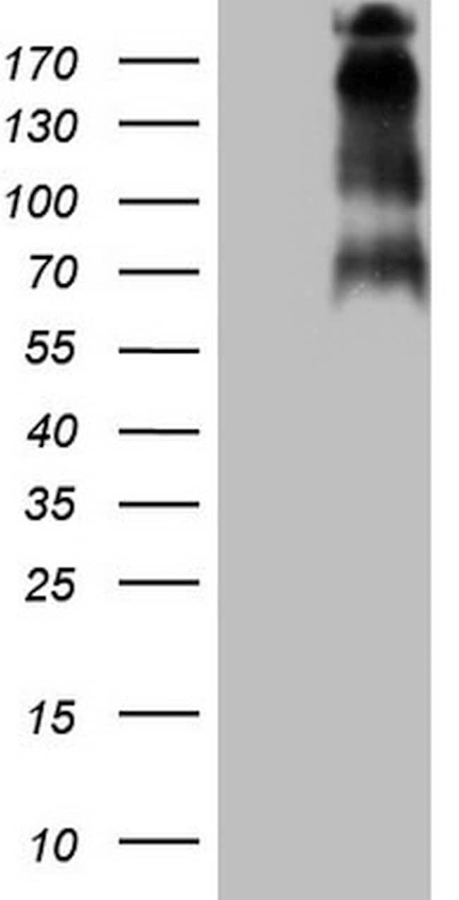TP53BP1 Antibody in Western Blot (WB)