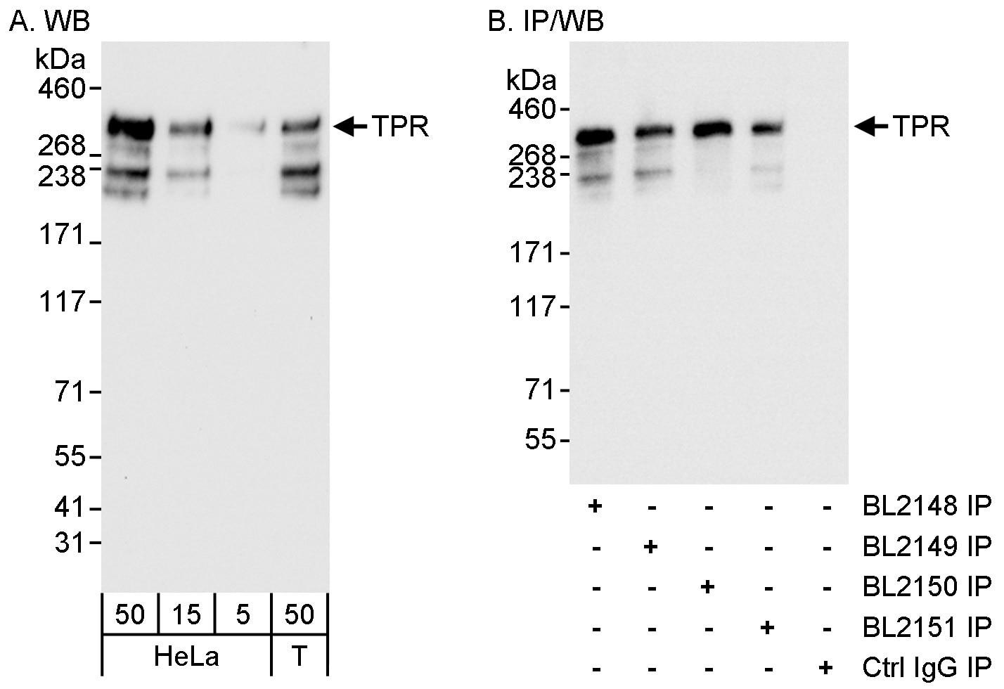 TPR Antibody in Western Blot (WB)