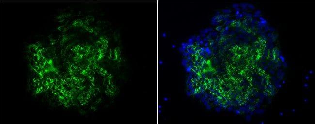 TRA-1-60 Antibody in Immunofluorescence (IF)