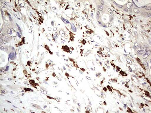 TRIM27 Antibody in Immunohistochemistry (Paraffin) (IHC (P))