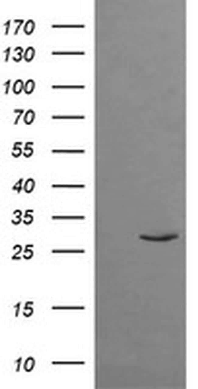 TRIM38 Antibody in Western Blot (WB)