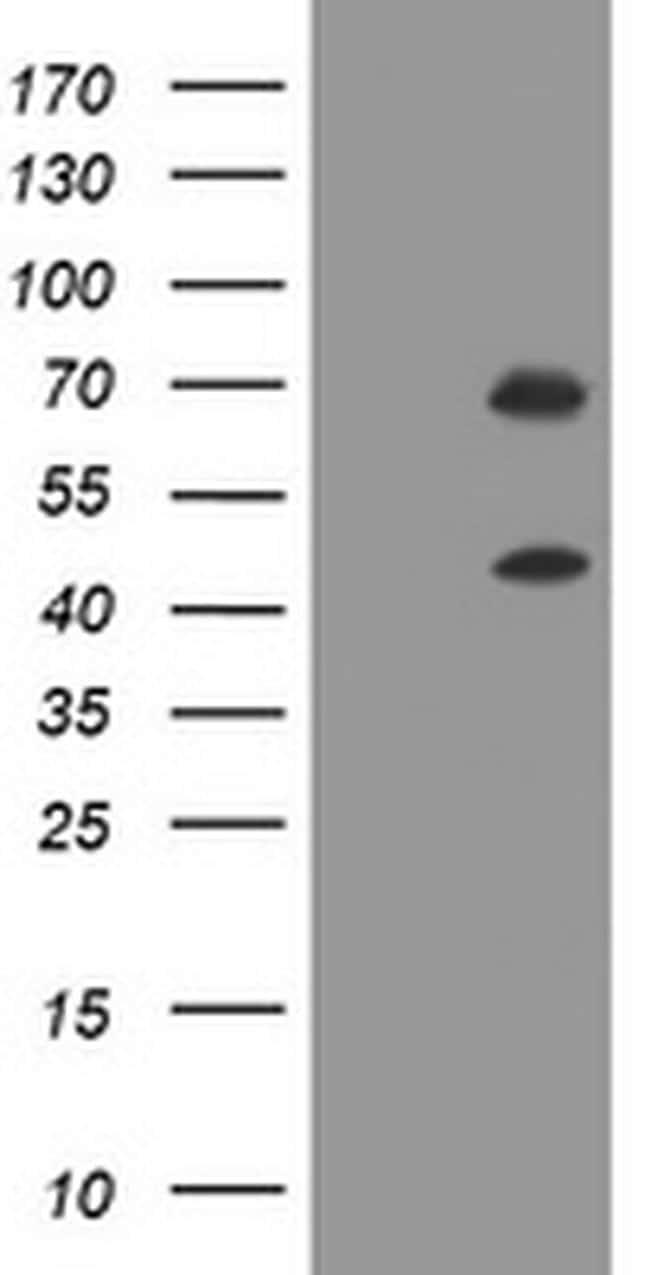TRMT2A Antibody in Western Blot (WB)