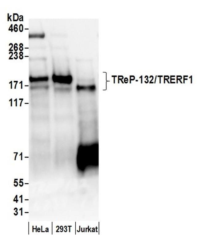 TReP-132/TRERF1 Antibody in Western Blot (WB)