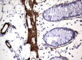 TSC1 Antibody in Immunohistochemistry (Paraffin) (IHC (P))